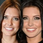 Audrina Patridge before and after chin surgery and lip implants 150x150