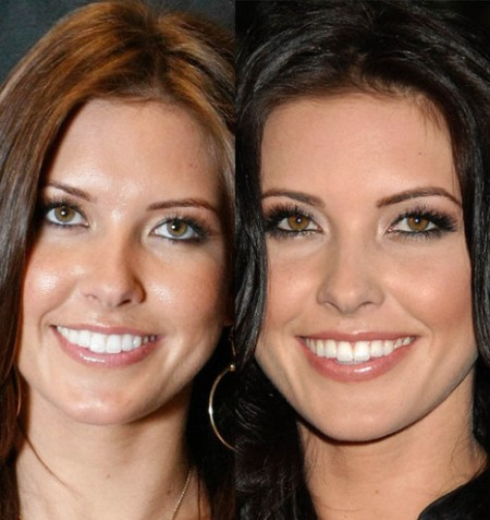 Audrina Patridge before and after chin surgery and lip implants