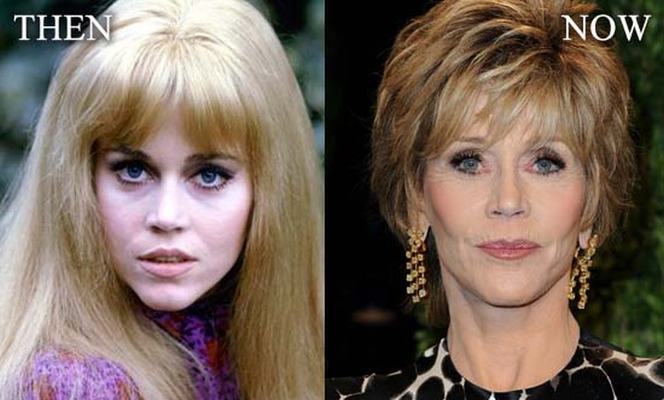 Jane Fonda after facelift plastic surgery