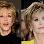 Jane Fonda before and after plastic surgery 150x150