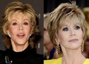 Jane Fonda before and after plastic surgery 300x217