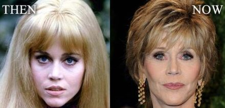 Jane Fonda's plastic surgery; behind the scenes of her exquisite look