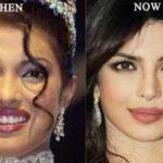 Priyanka Chopra Plastic Surgery Before After 150x150