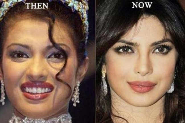 Priyanka-Chopra-Plastic-Surgery-Before-After