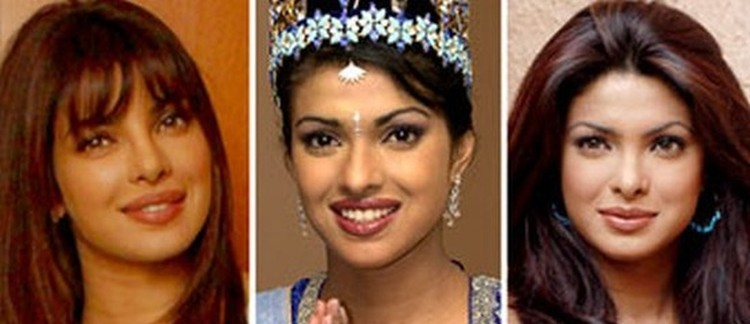 Priyanka Chopra before and after nose job plastic surgery