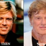 Robert Redford before after plastic surgery