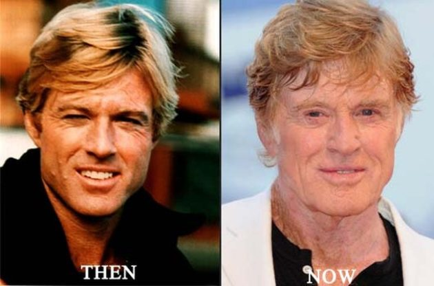 Robert Redford before after plastic surgery 630x416