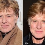 Robert Redford before and after plastic surgery 150x150