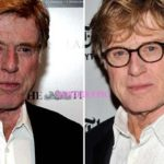 Robert Redford plastic surgery before and after 150x150