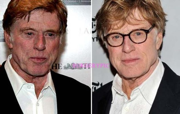 Robert Redford plastic surgery before and after 630x401