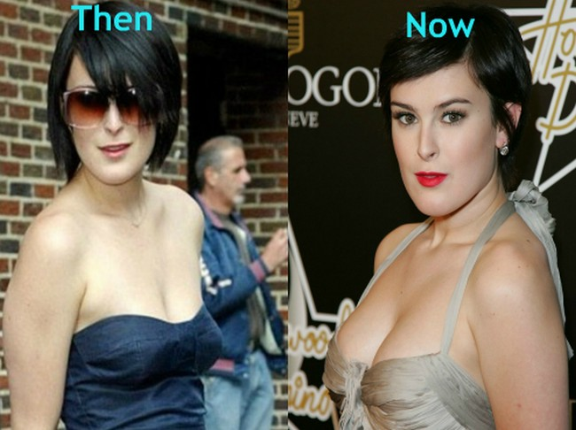 Rumer Willis before and after boob job