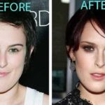 Rumer Willis before and after chin surgery