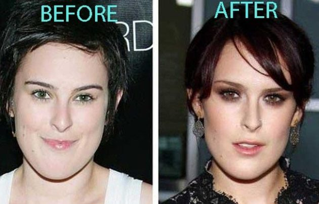 Rumer Willis before and after chin surgery 630x403