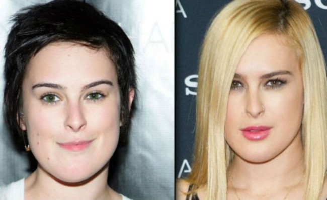 Rumer Willis before and after plastic surgery