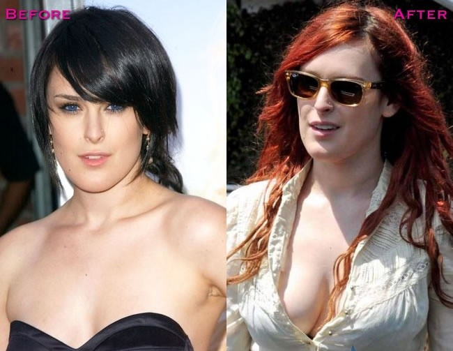 Rumer Willis boob job before and after pictures