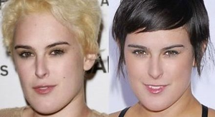 Rumer Willis Plastic Surgery Transformation