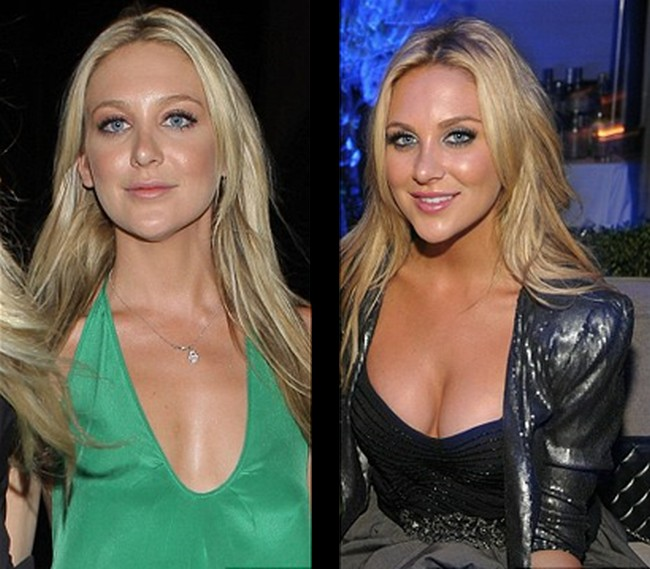 Stephanie Pratt before and after boob job