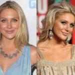 Stephanie Pratt before and after nose job