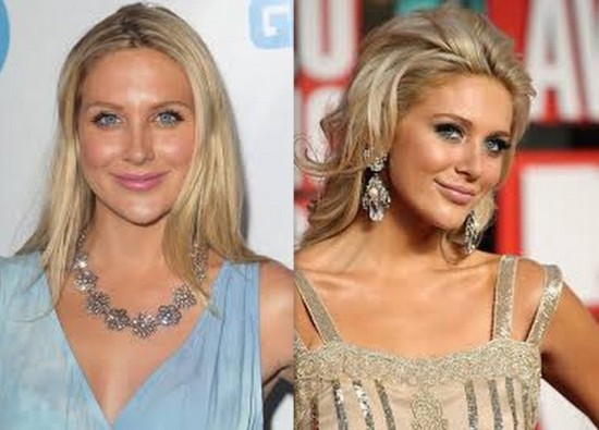 Stephanie Pratt before and after nose job