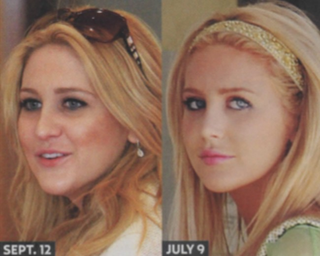 Stephanie Pratt Before And After Photos