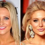 Stephanie Pratt before and after pictures 150x150