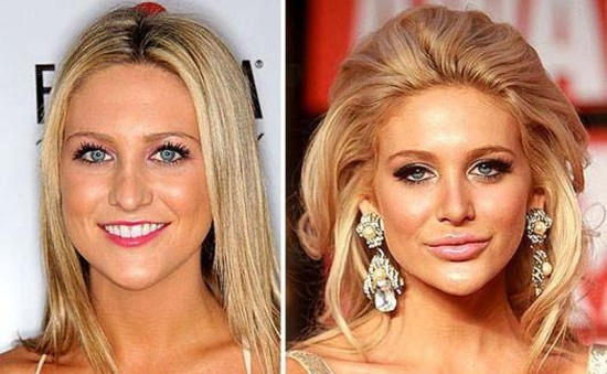 Stephanie Pratt before and after pictures