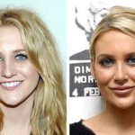 Stephanie Pratt before and after plastic surgery 150x150