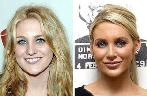 Stephanie Pratt before and after plastic surgery 300x196