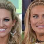 Stephanie Pratt plastic surgery before and after 150x150