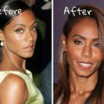 Jada Pinkett Smith before and after plastic surgery pictures 150x150
