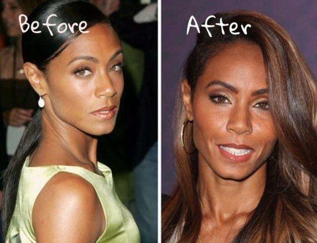 Jada Pinkett Smith before and after plastic surgery pictures
