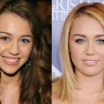 Miley Cyrus before and after cosmetic dentistry surgery