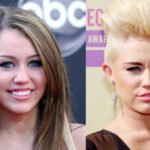 Miley Cyrus before and after nose job