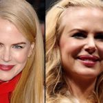 Nicole Kidman before and after plastic surgery facelift, botox, lip implants
