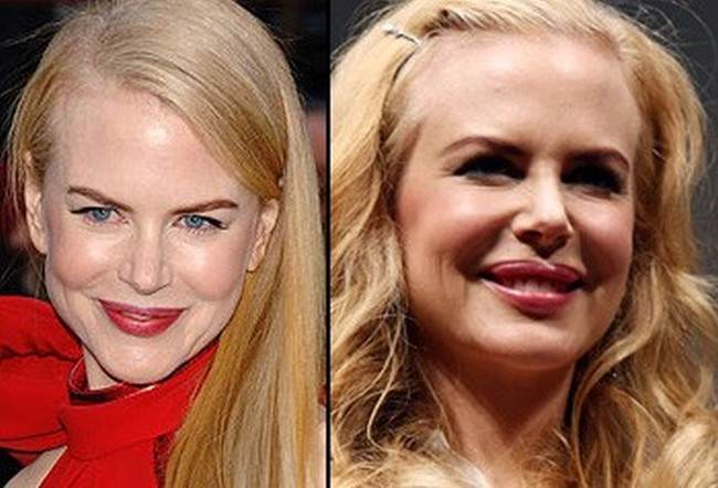 Nicole Kidman before and after plastic surgery facelift botox lip implants1