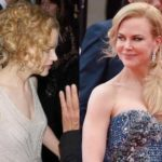 Nicole Kidman breast implants before and after plastic surgery pictures