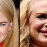 Nicole Kidman Plastic Surgery 150x150