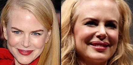 Nicole Kidman Plastic Surgery – Rumors or Facts?