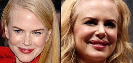 Nicole_Kidman_Plastic_Surgery