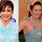 Patricia Heaton before and after breast surgery