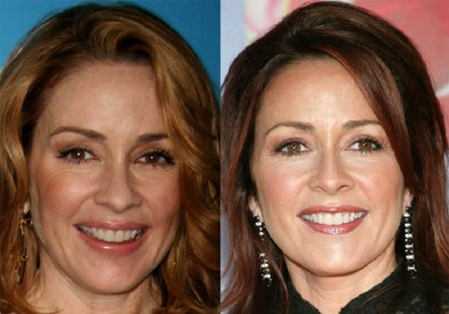 Patricia Heaton good plastic surgery