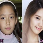 SNSD Yoona before and after plastic surgery pictures 150x150