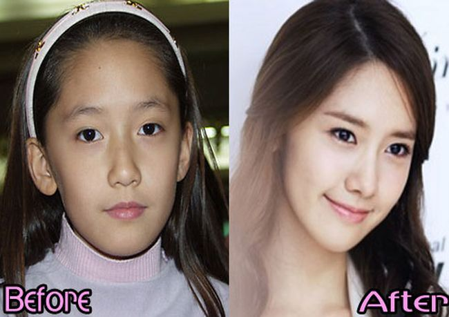 SNSD Yoona before and after plastic surgery pictures