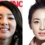 Sandara Dara Park before and after nose job plastic surgery