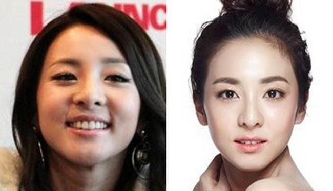 Sandara Dara Park before and after nose job plastic surgery