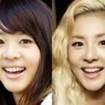 Sandara Park 2ne1 nose job plastic surgery