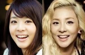 Sandara Park 2ne1 nose job plastic surgery 300x196