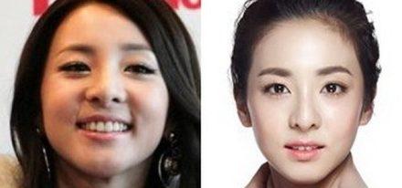 Are the Sandara Park plastic surgery rumors true?