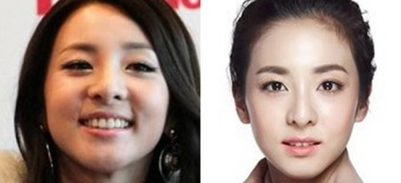 Are the Sandara Park plastic surgery rumors true?