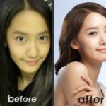 Yoona before and after nose job plastic surgery 150x150